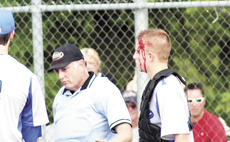 """<div class=""""source""""></div><div class=""""image-desc"""">Walton-Verona's catcher was struck by a bat after taking his helmet off during a play. After a brief delay, he returned to the game.  </div><div class=""""buy-pic""""><a href=""""/photo_select/17936"""">Buy this photo</a></div>"""